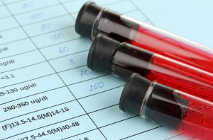 5 Ways to Beat a DWI/DUI in Ocean County, NJ by Challenging a Blood Test